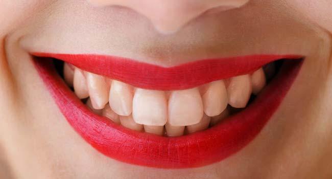 Оренбург полоски для зубов